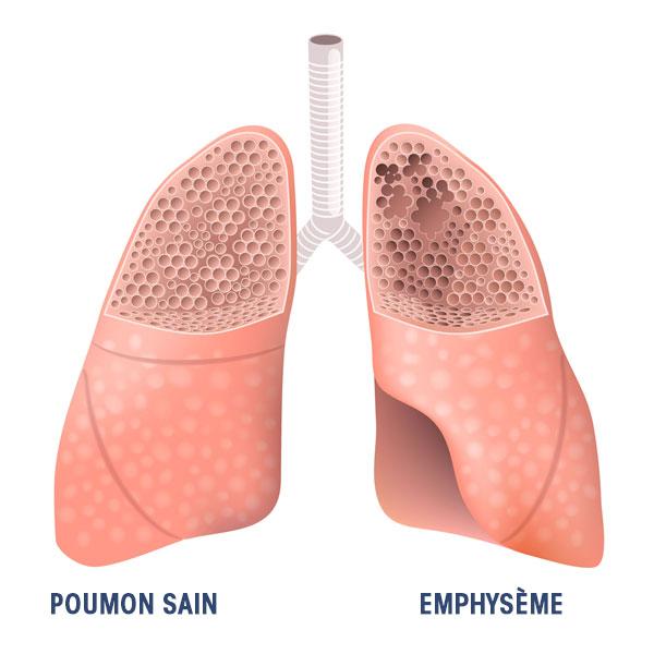 Chirurgie fonctionnelle de l'insuffisance respiratoire